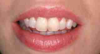Dr. Rahimi Dental Smile Case 1 Composite bonding before