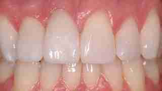 Dr. Rahimi Dental Smile Case 2 after