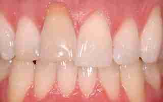 Dr. Rahimi Dental Smile Case 2 before
