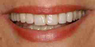 Dr. Rahimi Dental Smile Case 3 Implant after