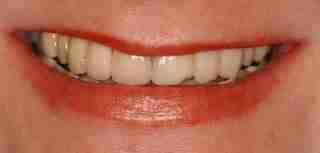 Dr. Rahimi Dental Smile Case 4 before