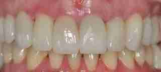 Dr. Rahimi Dental Smile Case 5 after