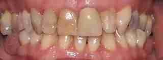 Dr. Rahimi Dental Smile Case 5 before